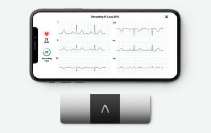 FDA allows AliveCor's AI ECG to detect coronavirus drug-induced heart problems