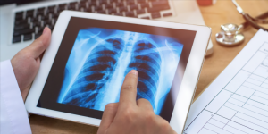 Maccabi to deploy AI that identifies patients at risk of developing COVID-19 complications
